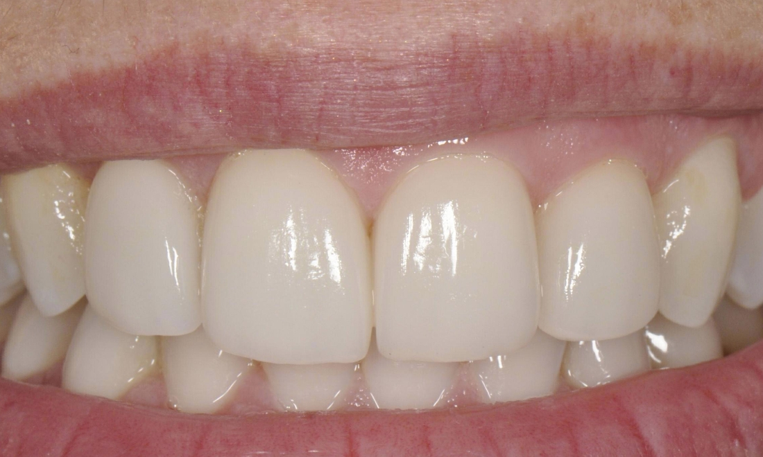After front veneers at Mark R. Maher, DDS in Walnut Creek, CA