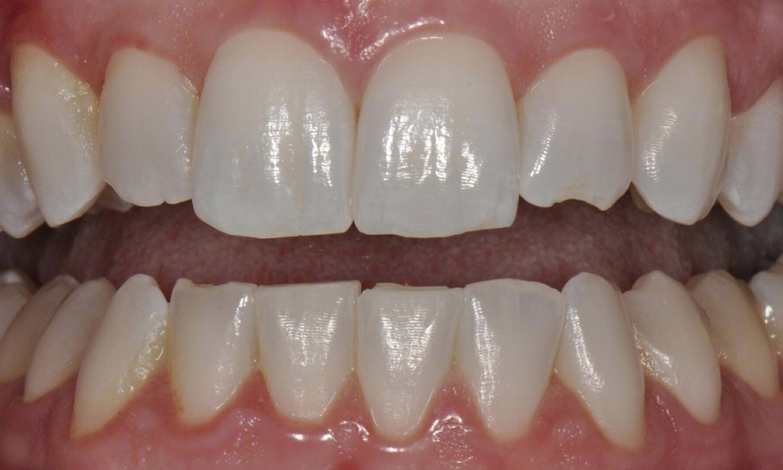 Before front veneers at Mark R. Maher, DDS in Walnut Creek, CA