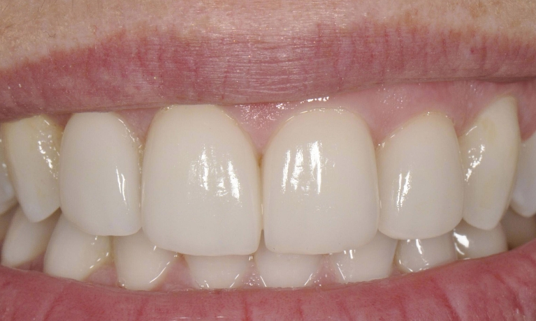 Front-Veneers-After-Image